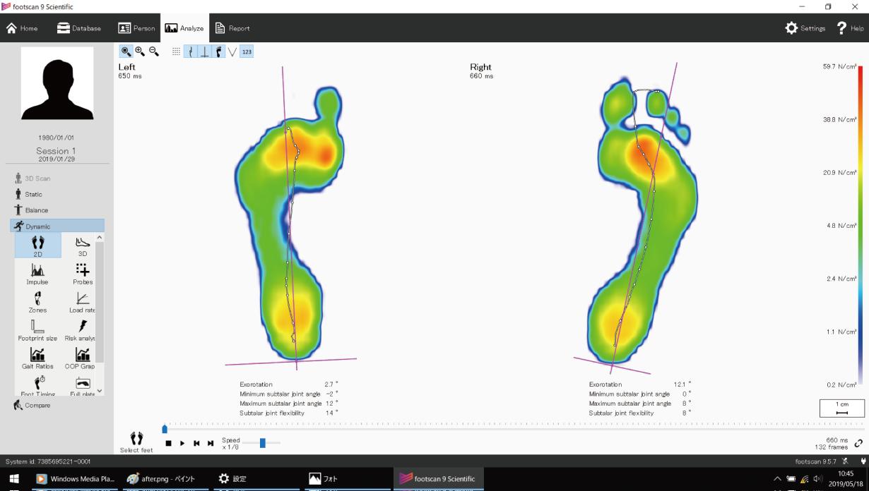 施術前:足底圧測定画像