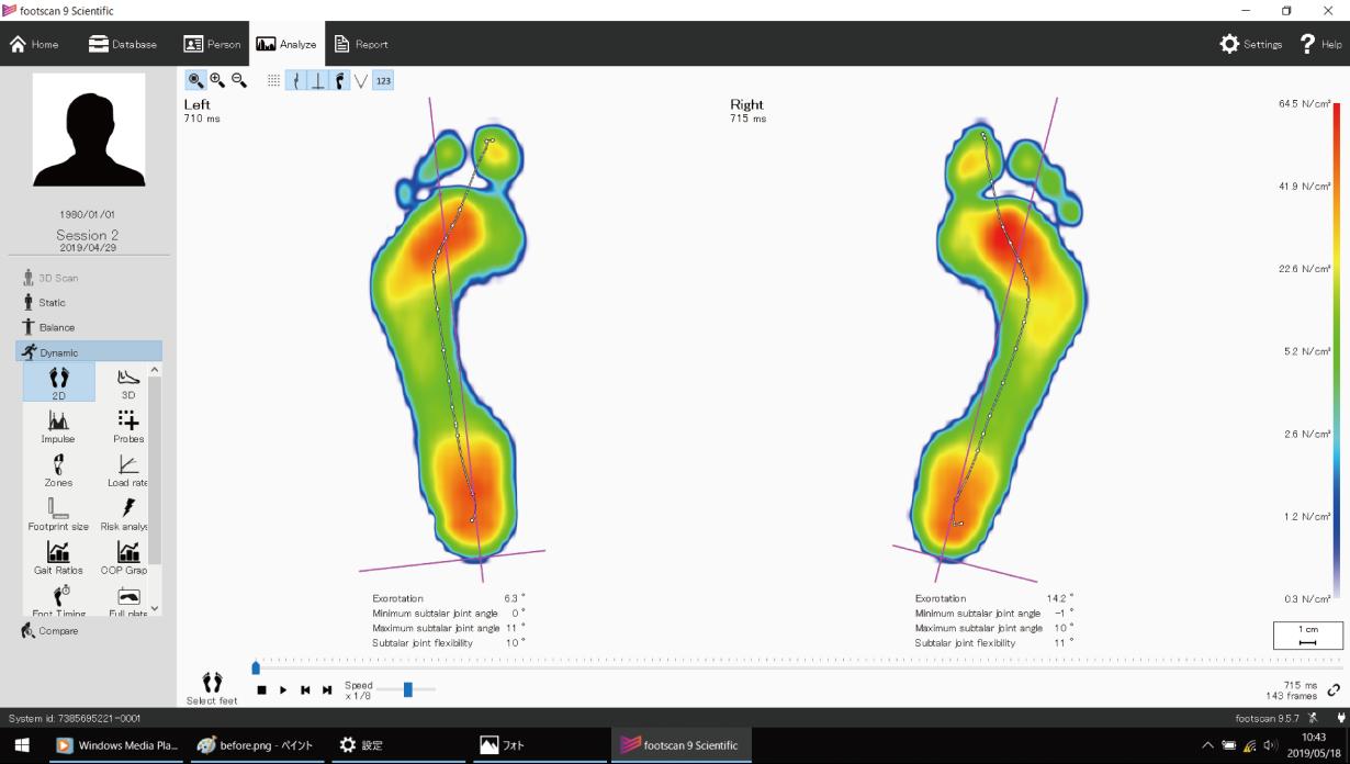 施術後:足底圧測定画像